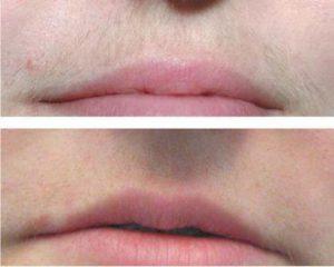 Остатки волос на губе